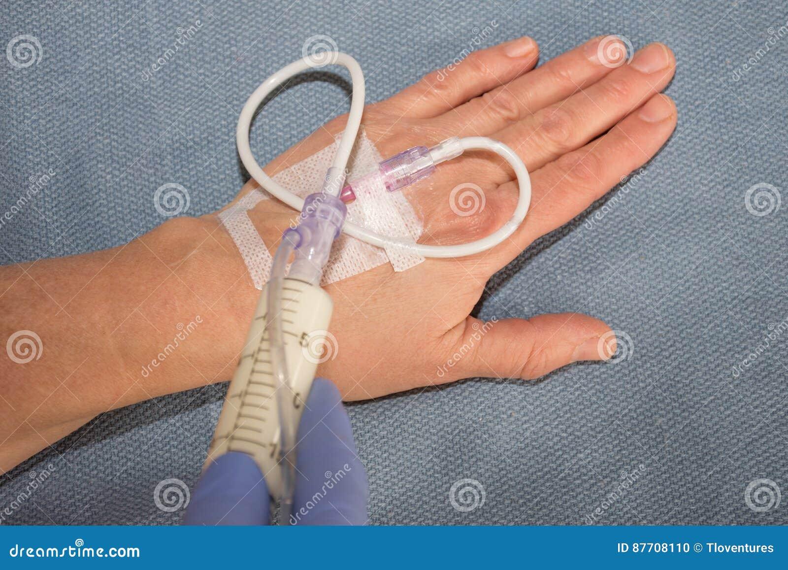 Injection de Propofol par la ligne intraveineuse à disposition