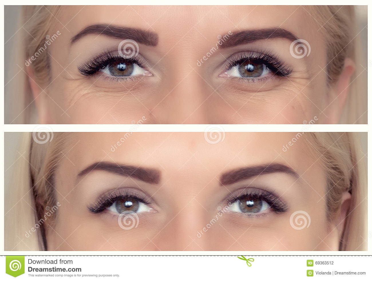 Angel eyes before and after-9442