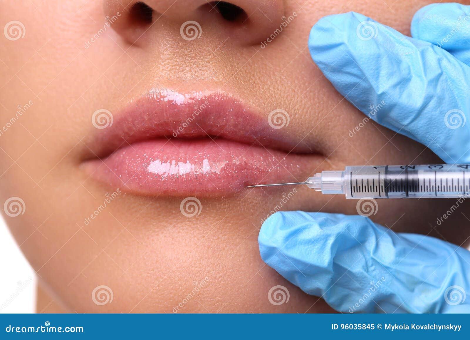 Injektion i hennes kanter