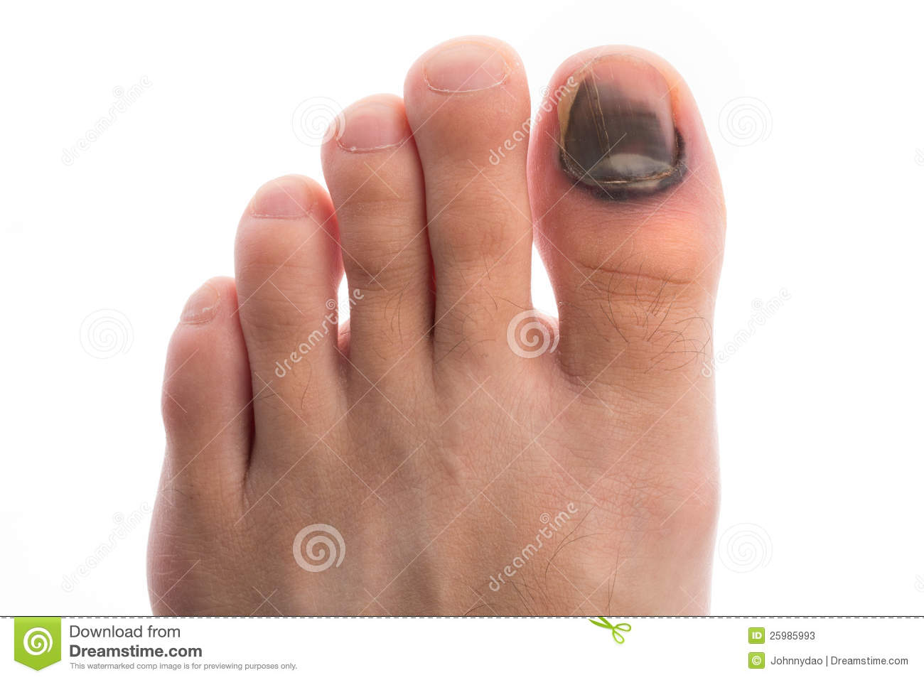 What Do Toe bleeding Symbolize in Dreams and How to ...
