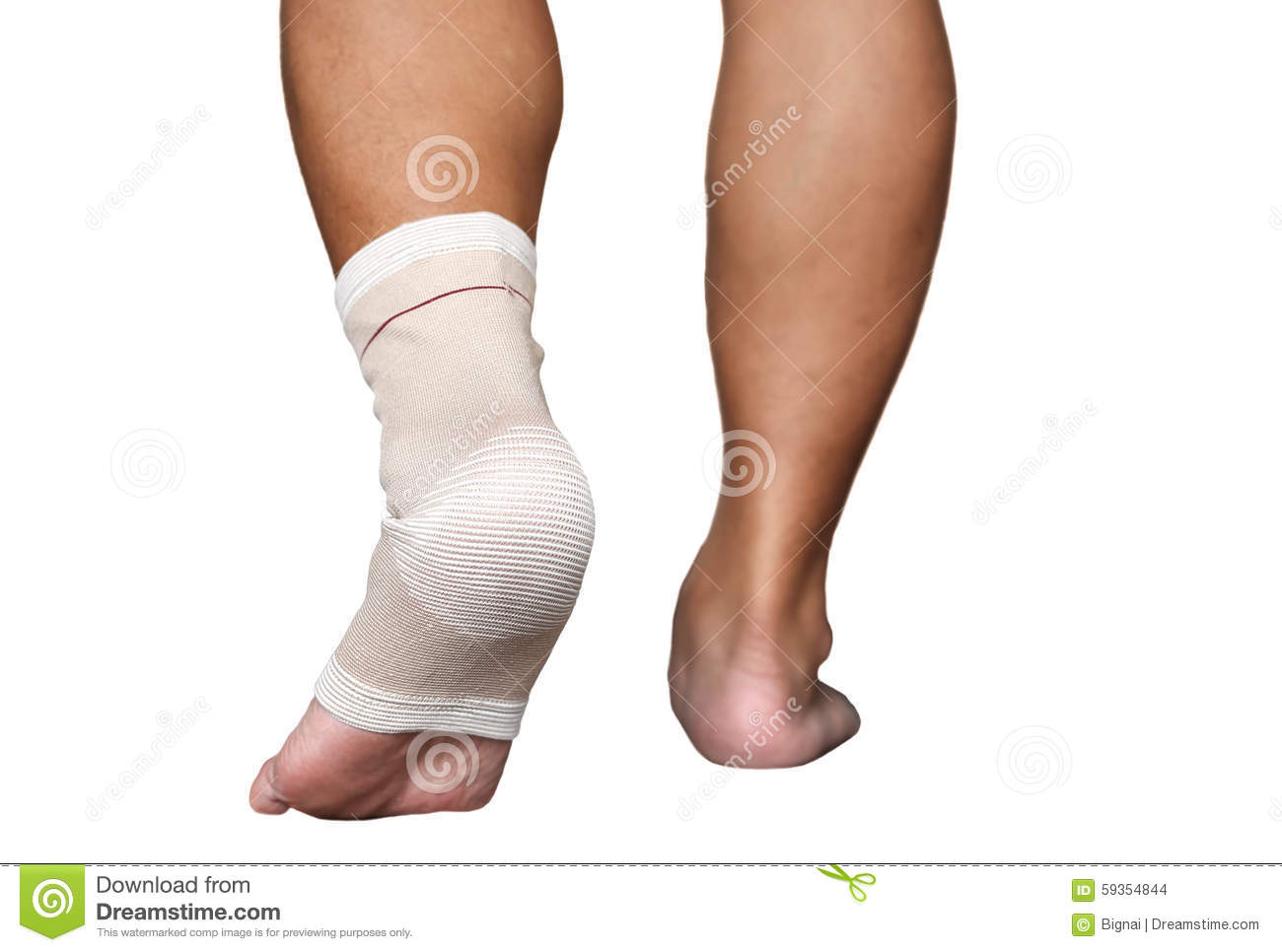 sprained ankle bandage A sprained ankle is quite common, especially with children thankfully, there are several safe home remedies for sprained ankle.