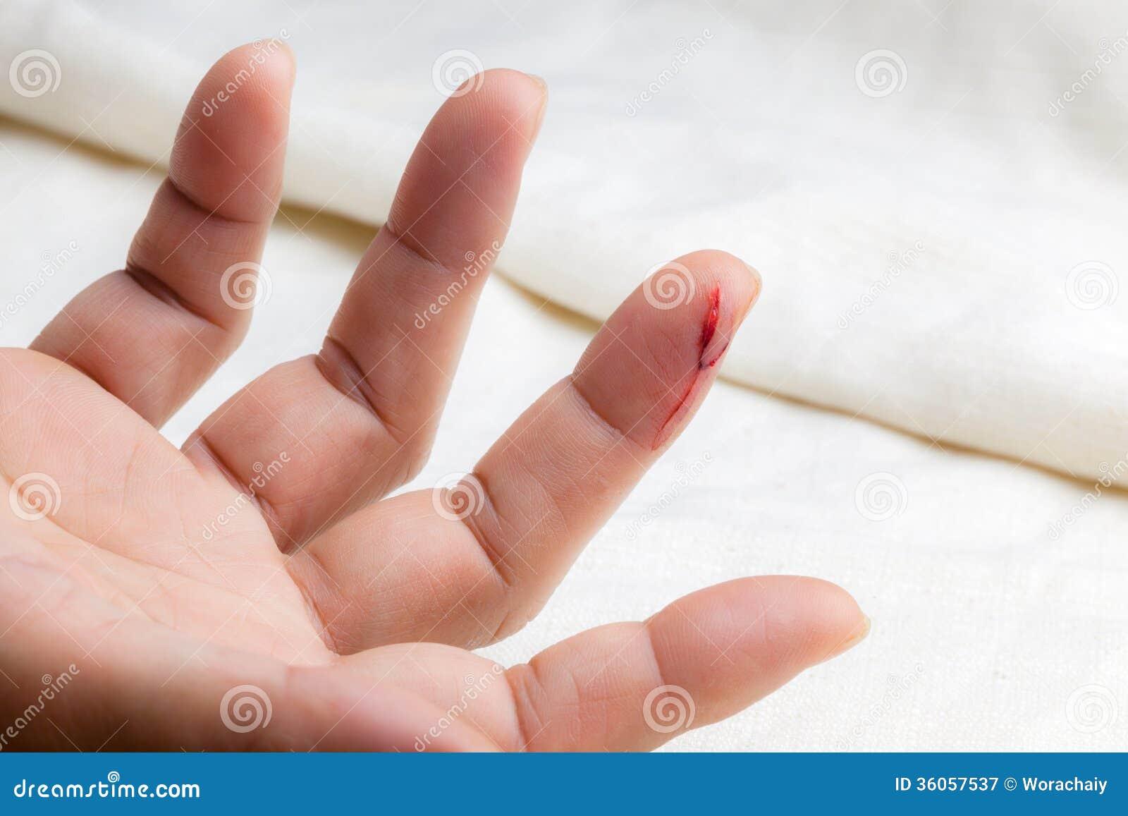 Injured Finger Stock Image. Image Of Horror, Skin, Injury