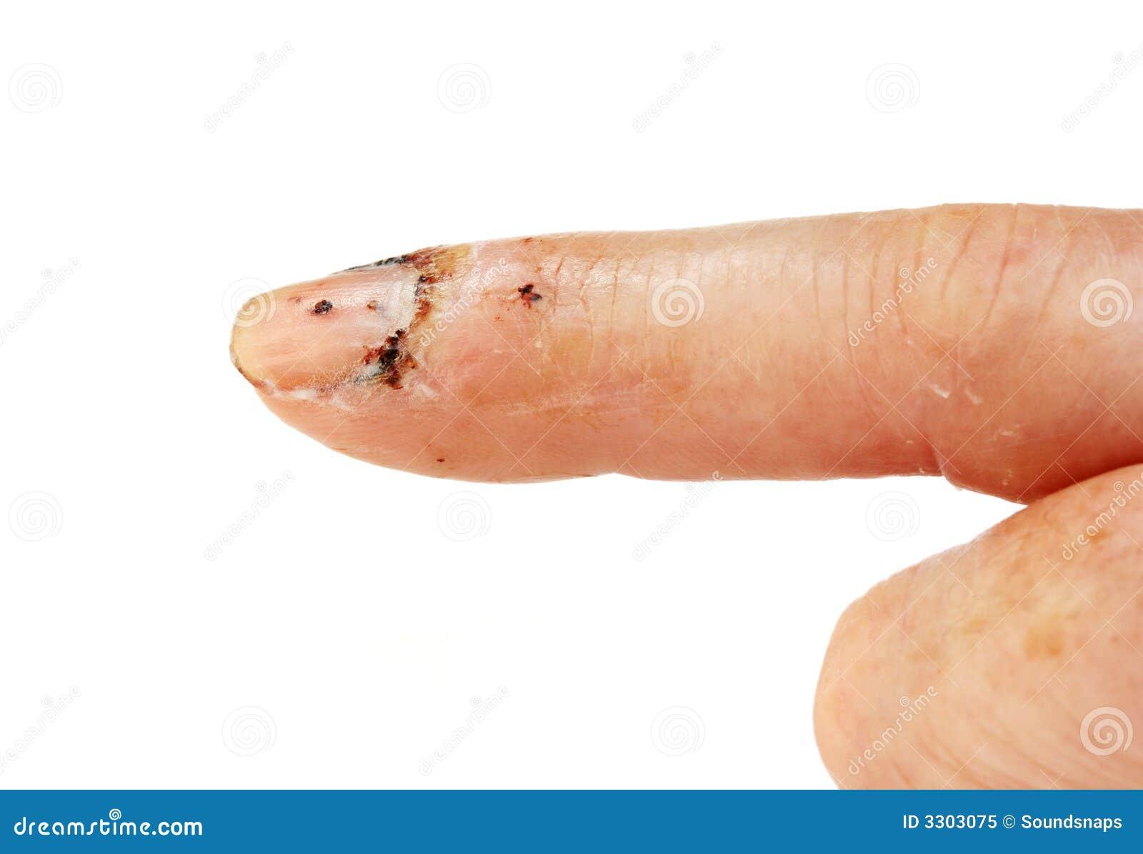 Injured Finger Close Up Royalty Free Stock Photo - Image ...
