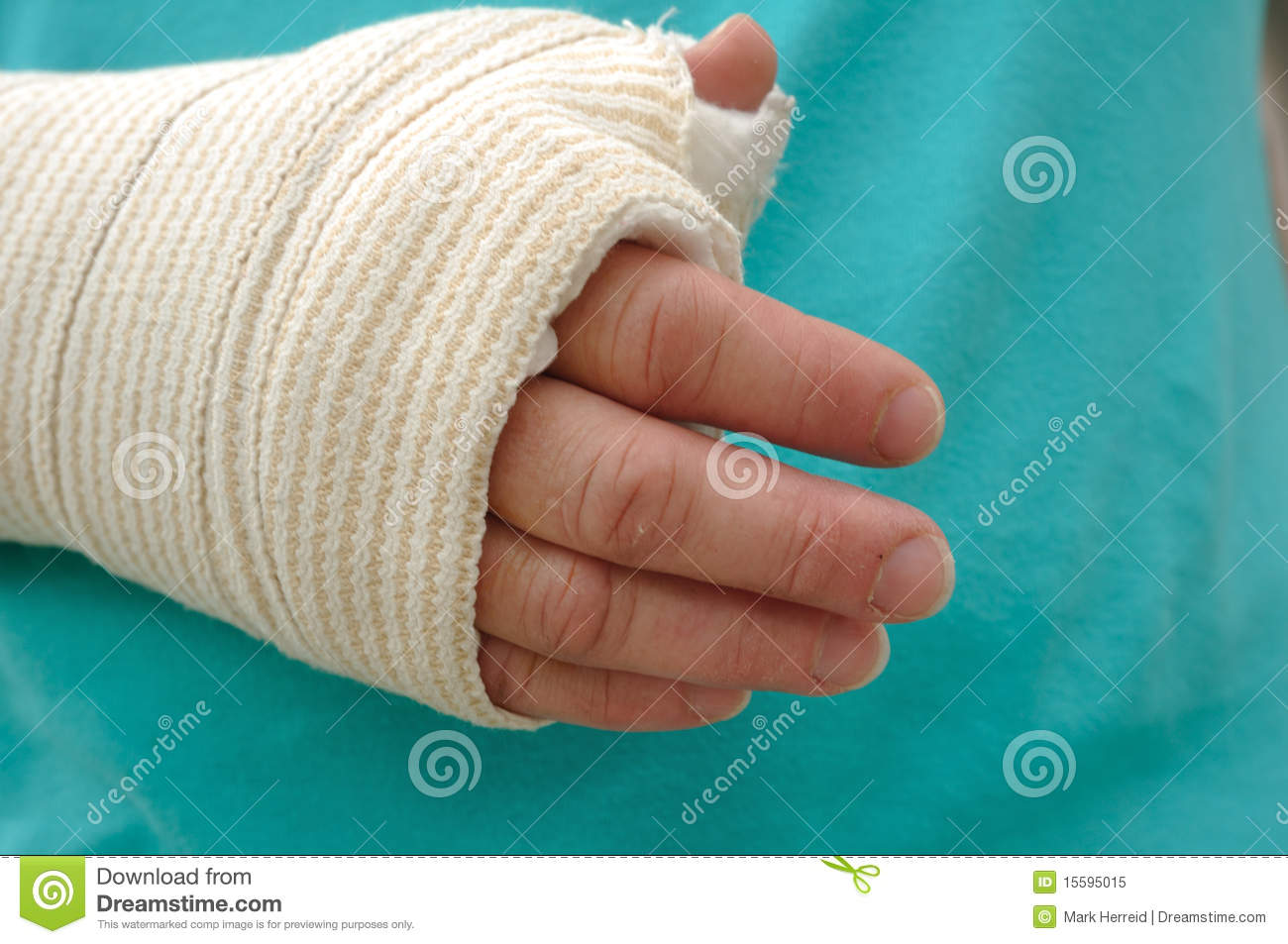 Injured Hand And Arm Royalty Free Stock Photo - Image: 15595015