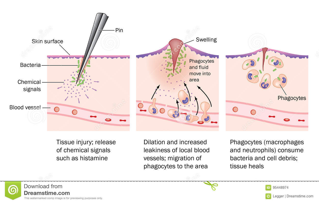 the process of injury, resulting inflammation and resolution