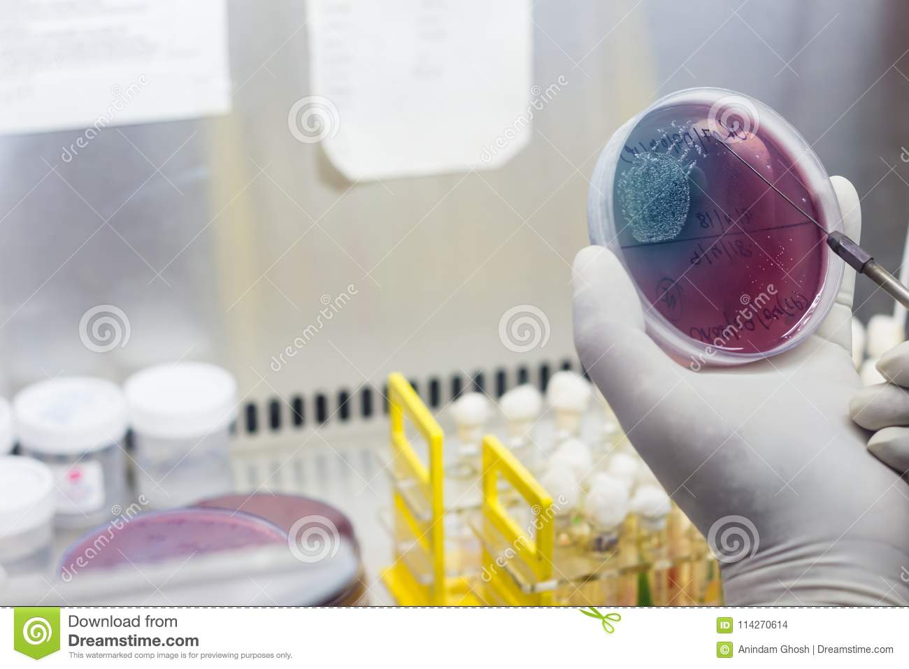 Inoculation On Blood Agar On A Culture Plate Using Inoculation Loop ... for Inoculation Microbiology  56mzq