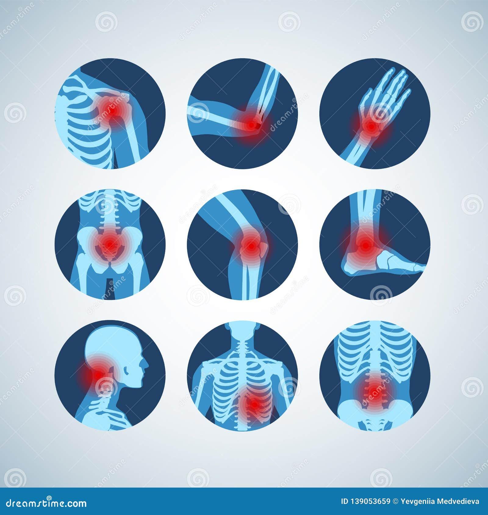 Insieme Medico Di Disordine Reumatico O Di Reumatismo..