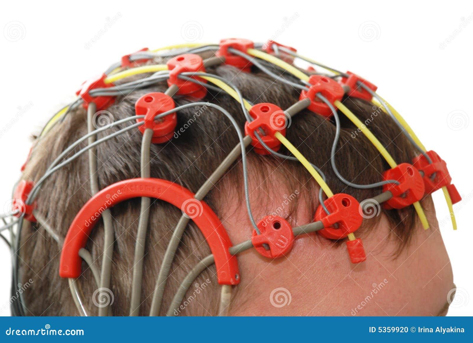 Inspection d épilepsie