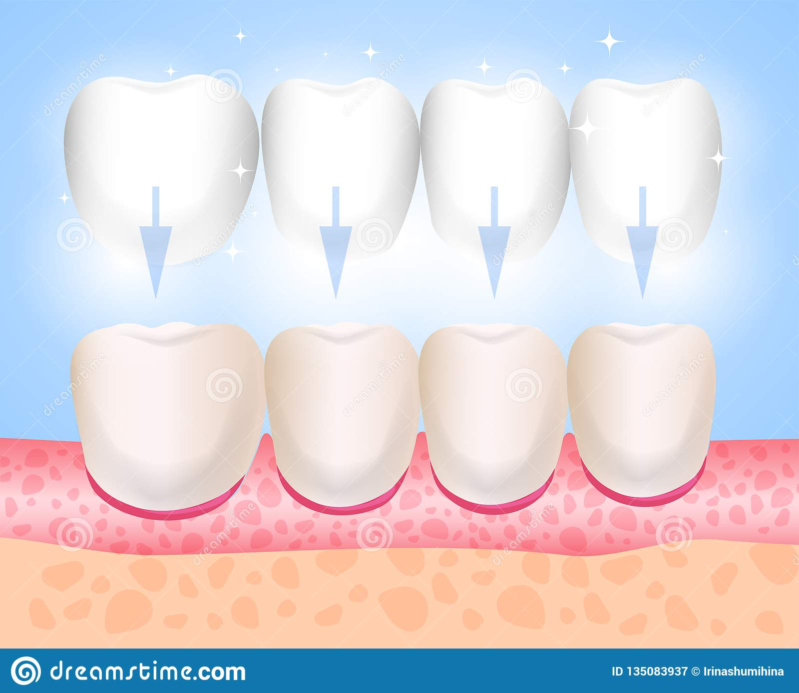 A instalação dos folheados Folheados, Lumineers, onlays, microprosthesis Medicina estética Ortopedia da odontologia do sentido