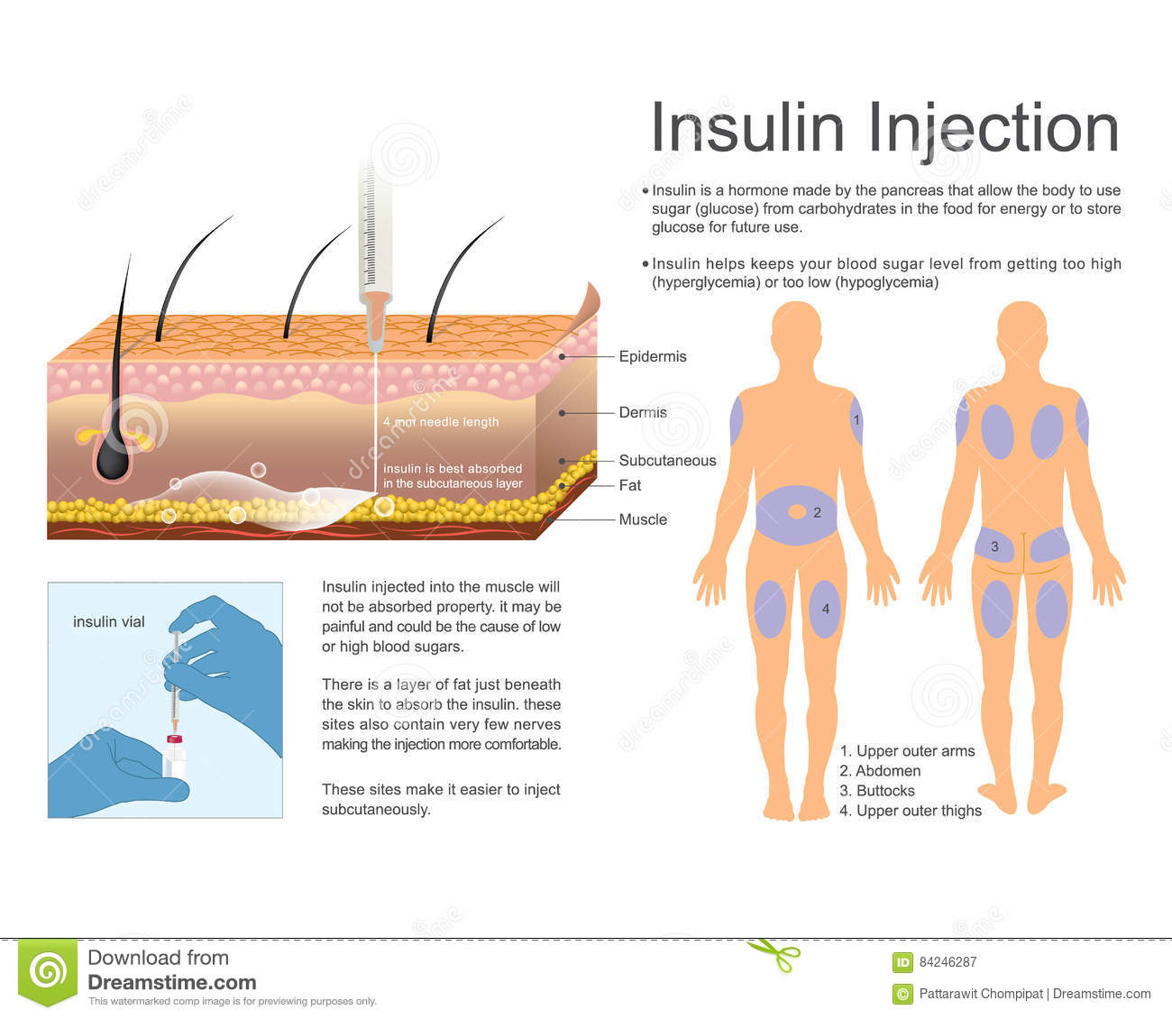 Diabetic Injection Sites: Hyperglycemia Cartoons, Illustrations & Vector Stock