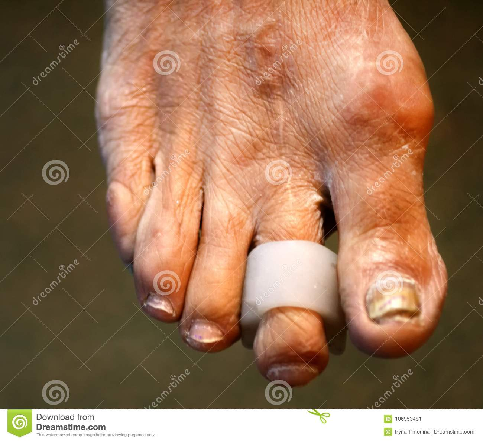 Interdigital ochraniacze rozdziały stopa Kukurudza na palec u nogi Kabłąkowatość palce Interdigital Kukurydzany ochraniacz