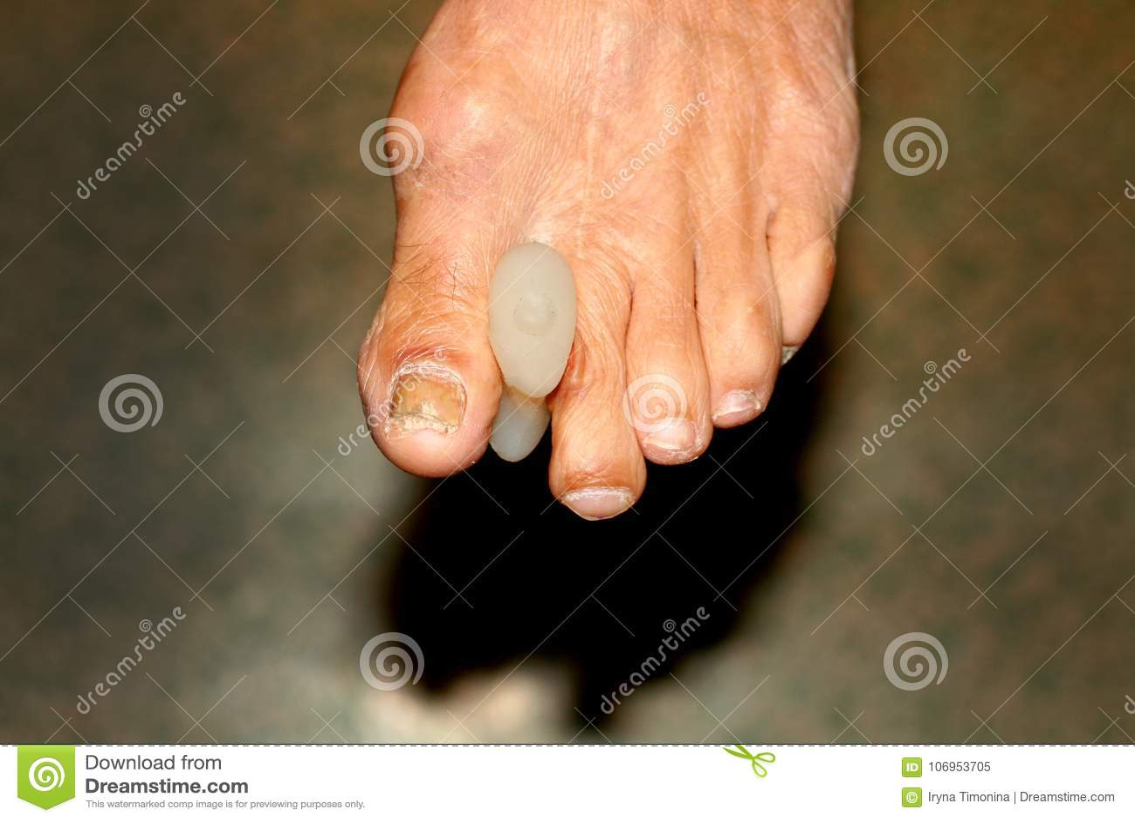 Interdigital stootkussens verdelingen voet Graan op tenen Kromming van vingers Interdigital Graanstootkussen