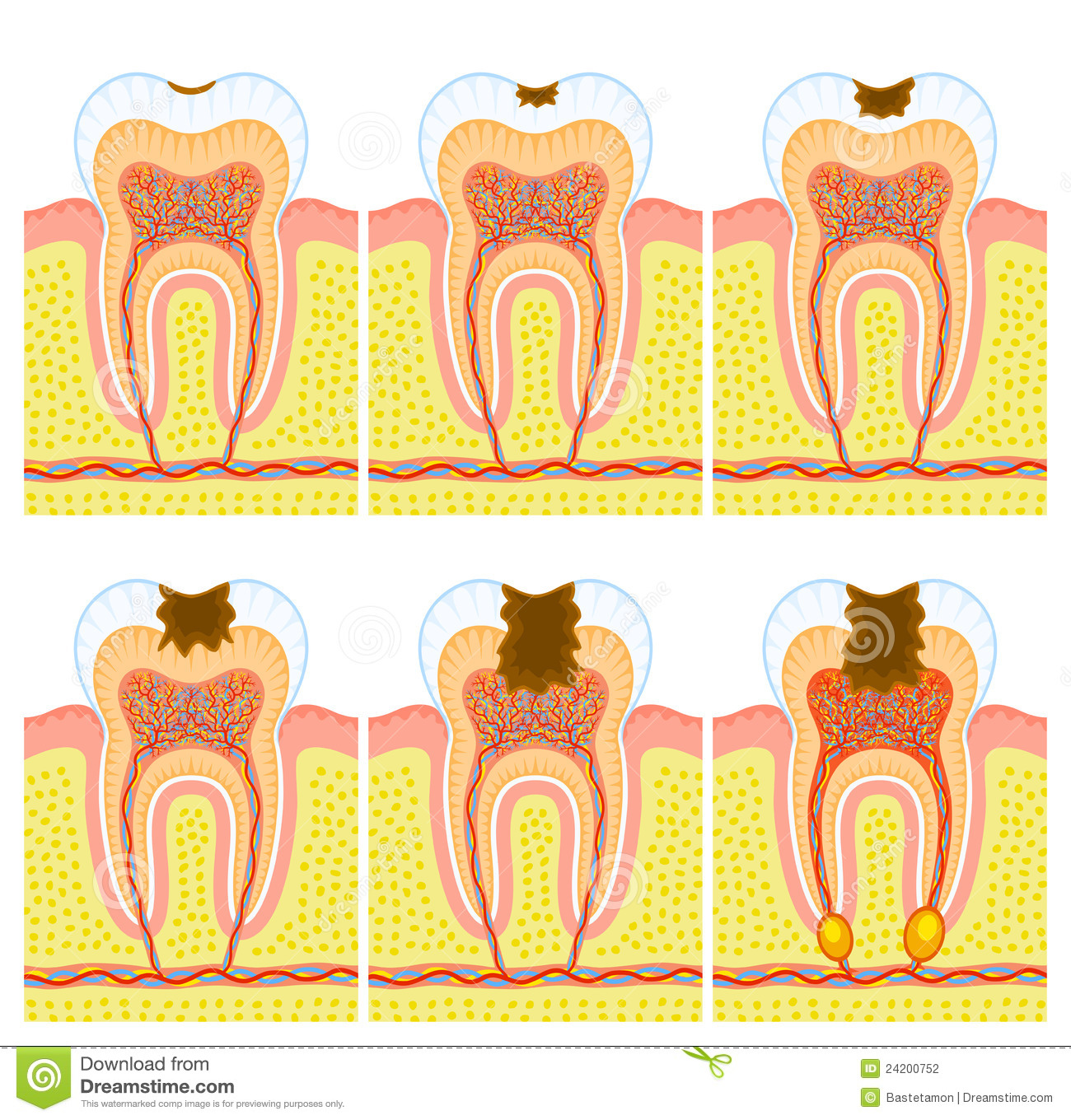 Jawbone stock illustrations 168 jawbone stock illustrations internal structure of tooth some illustrations of an internal structure of tooth caries and biocorpaavc Image collections