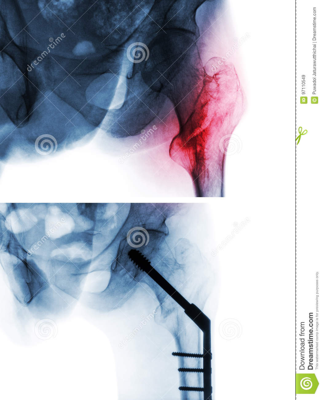 Intertrochanteric fracture femur thigh bone . X-ray of hip and comparison between before surgery upper image and after surger