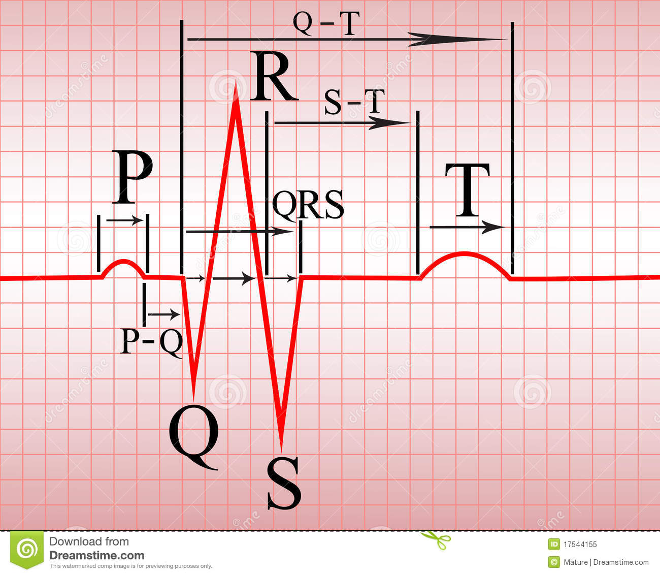 research paper on elctrocardiogram ecg How long does one small horizontal square and ekg paper represent one large block of ecg paper equals what size 15 interesting research paper topics for.