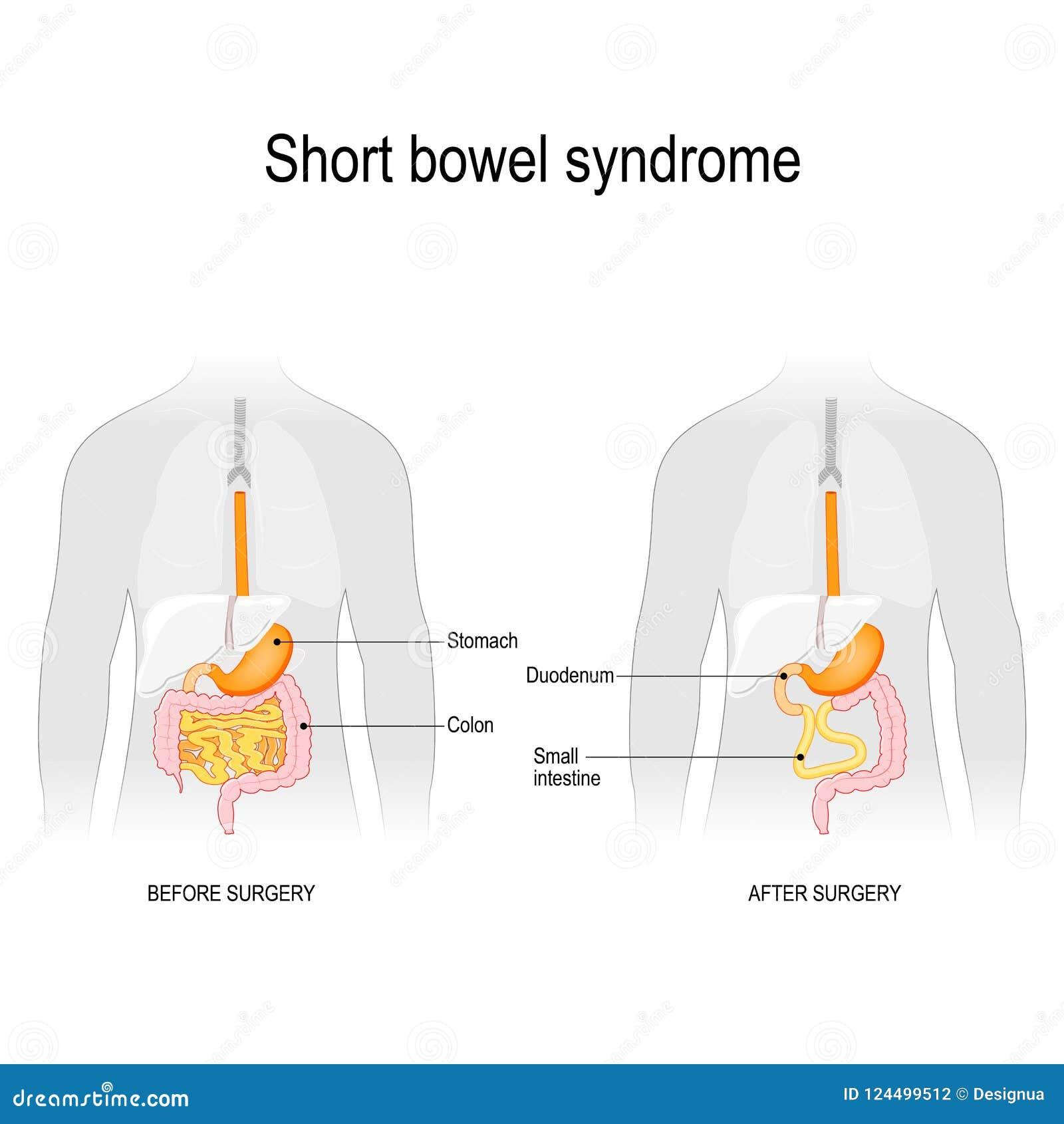 Intestino curto Antes da cirurgia e após a cirurgia