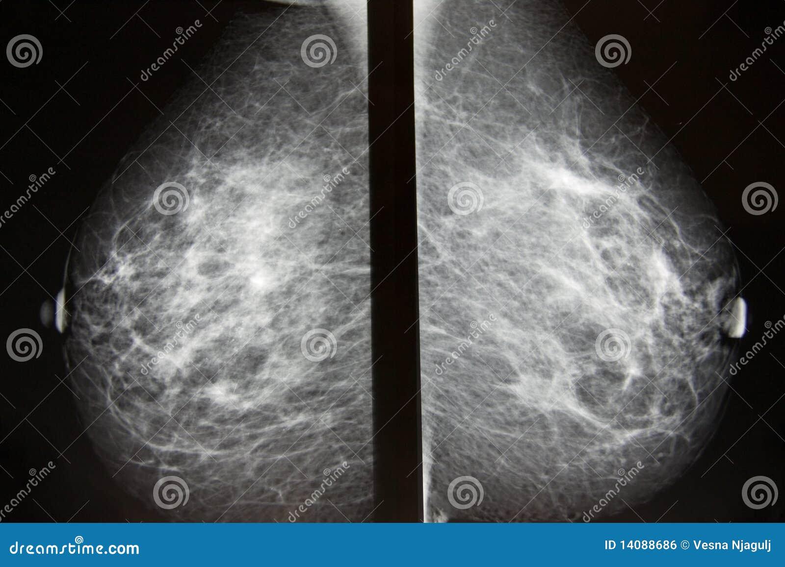 Investigación para el cáncer de pecho