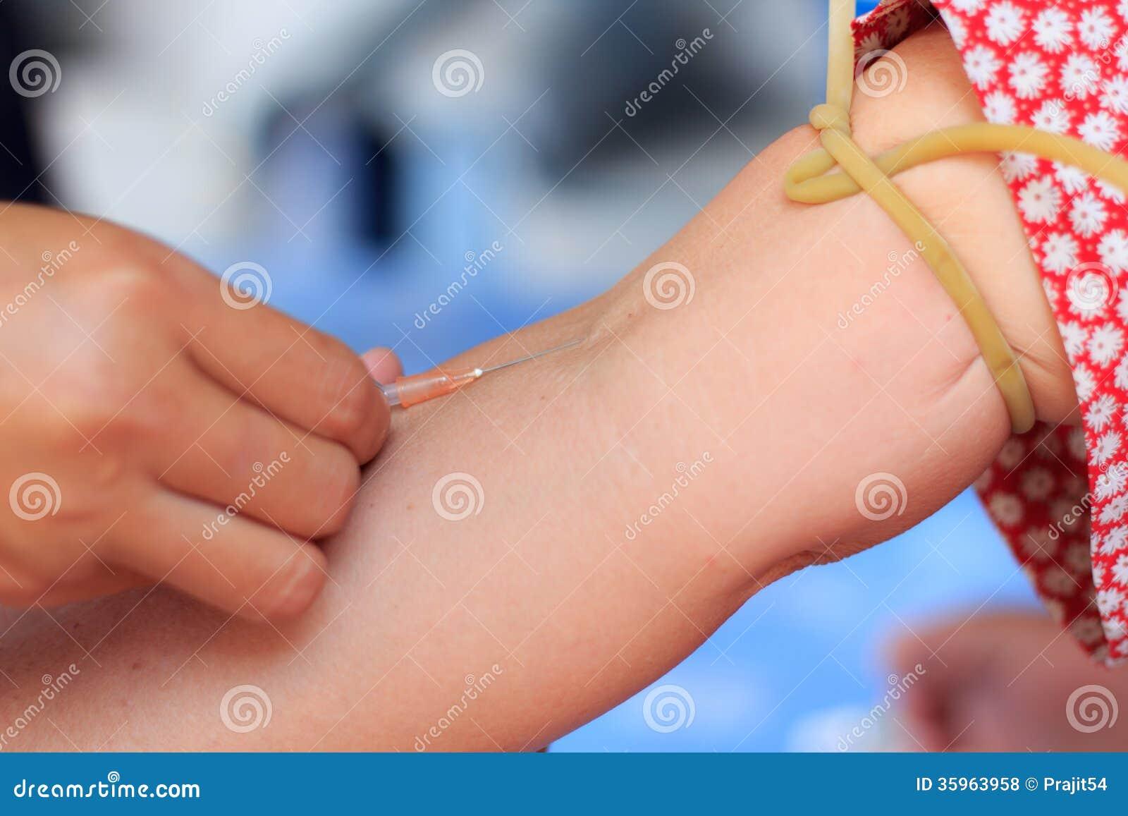 Inyección hipodérmica