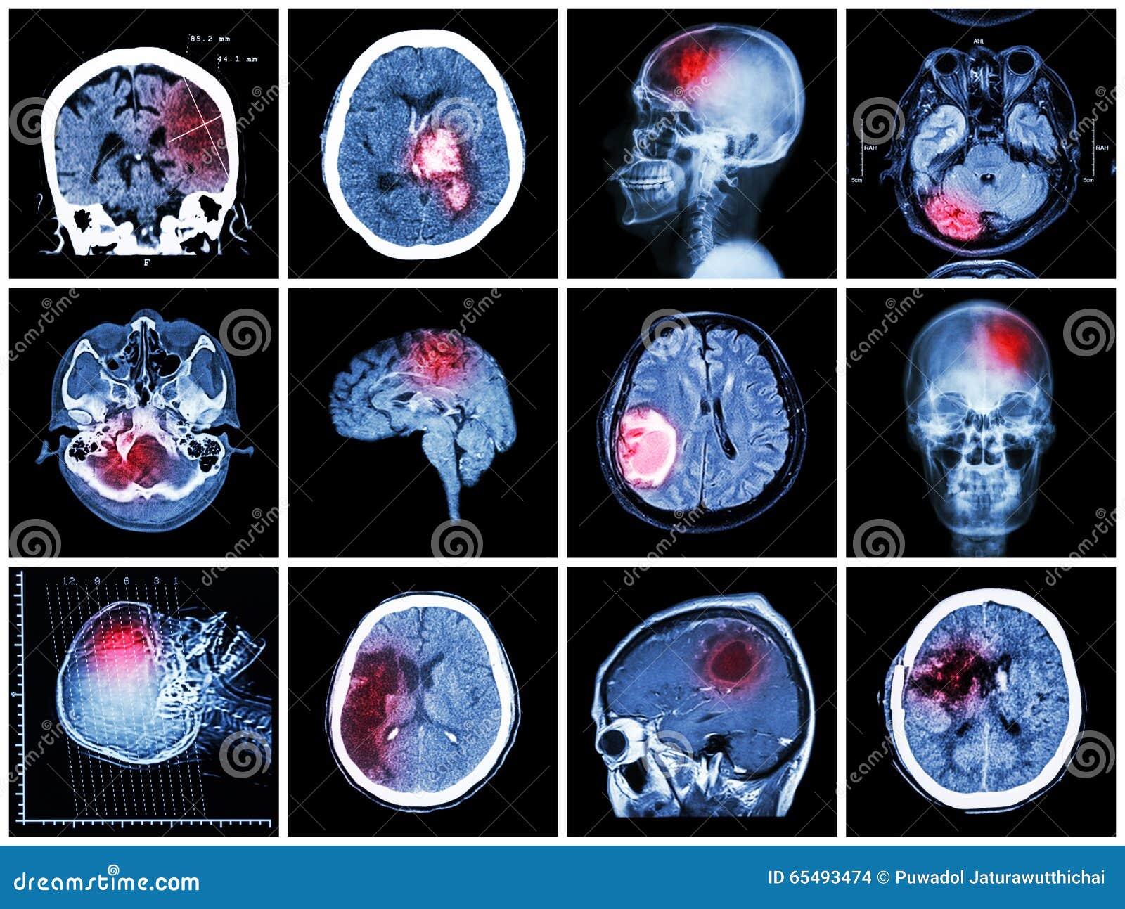 Inzameling van hersenenziekte