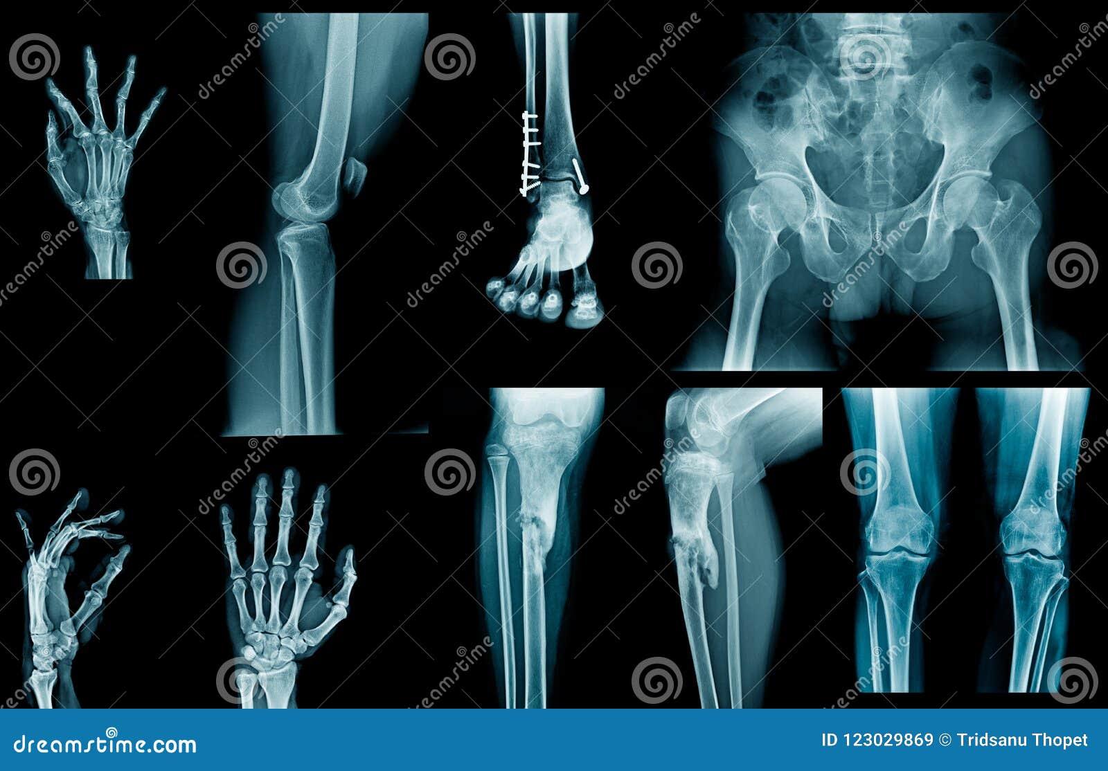 Inzamelings x-ray beeld