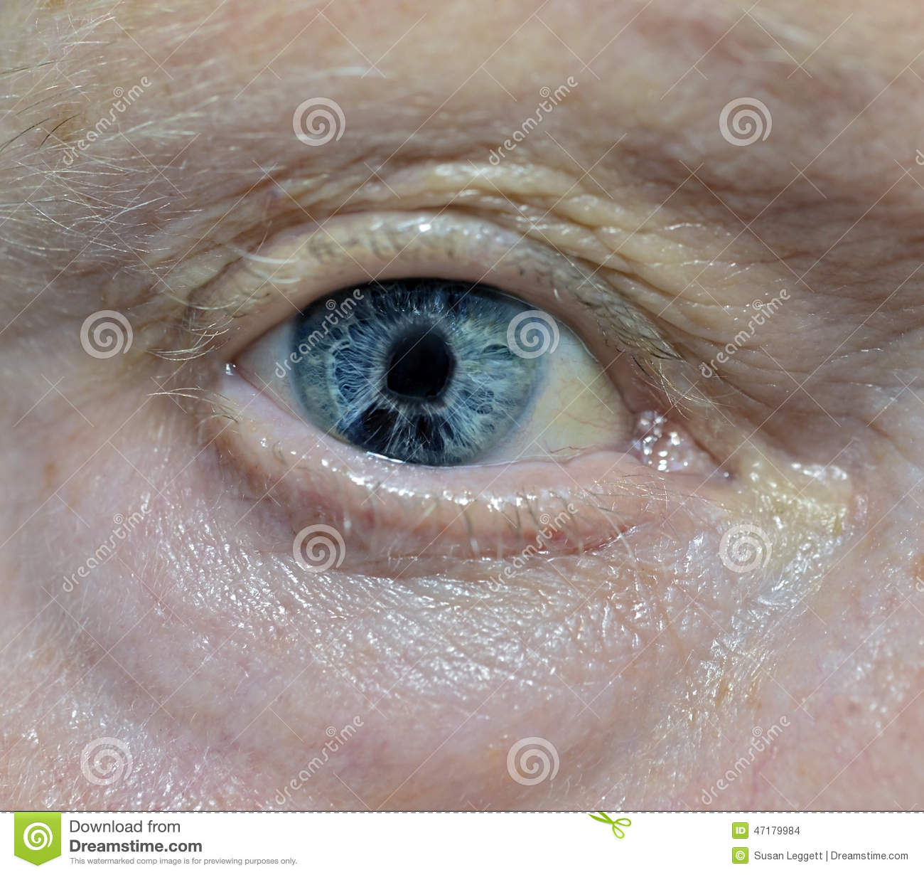 Photo shows eye problem Check Out This Holiday 2017 Photo of Vicki Gunvalson The Daily