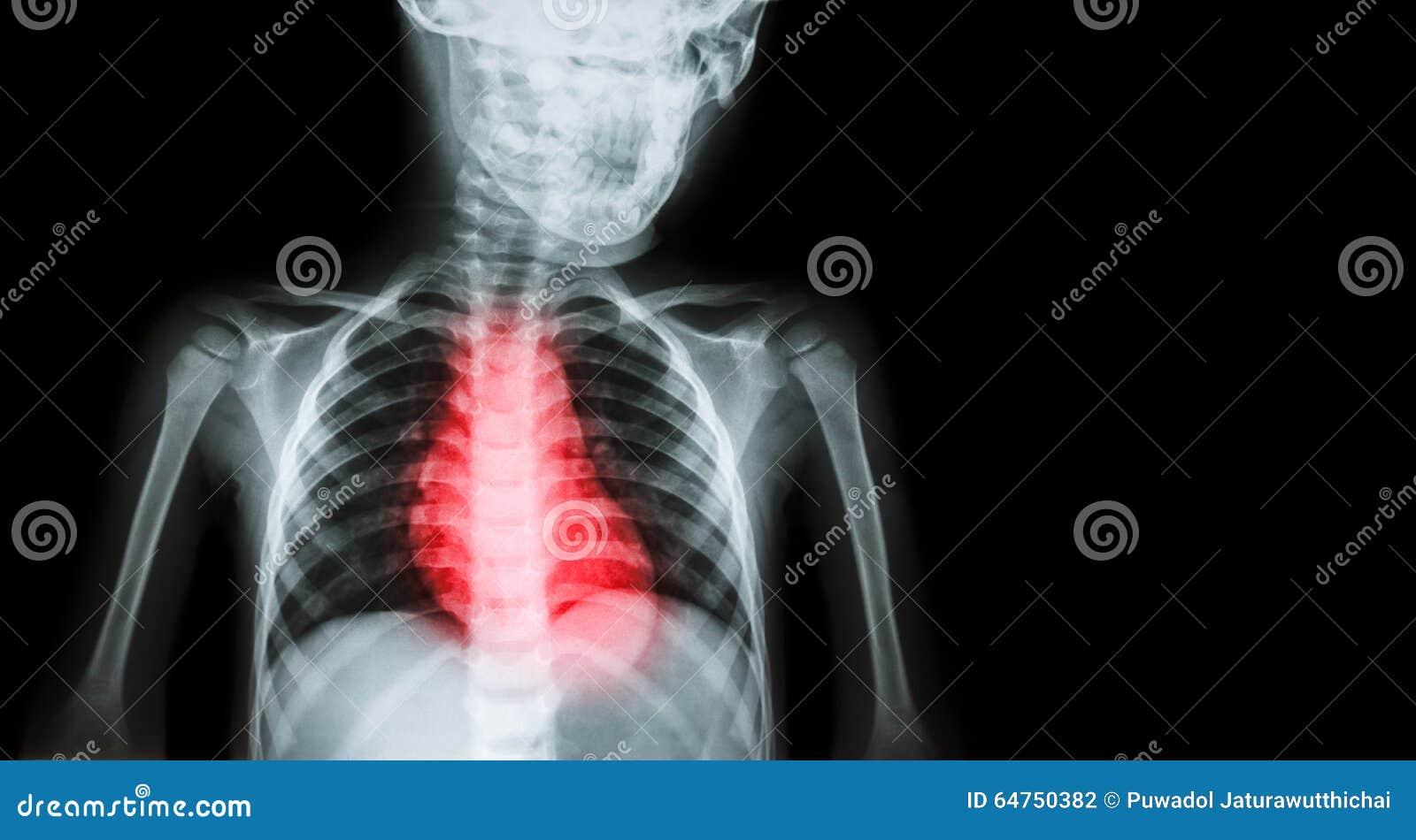 Ischämisches Herz-Krankheit, Myokardinfarkt (MI ...