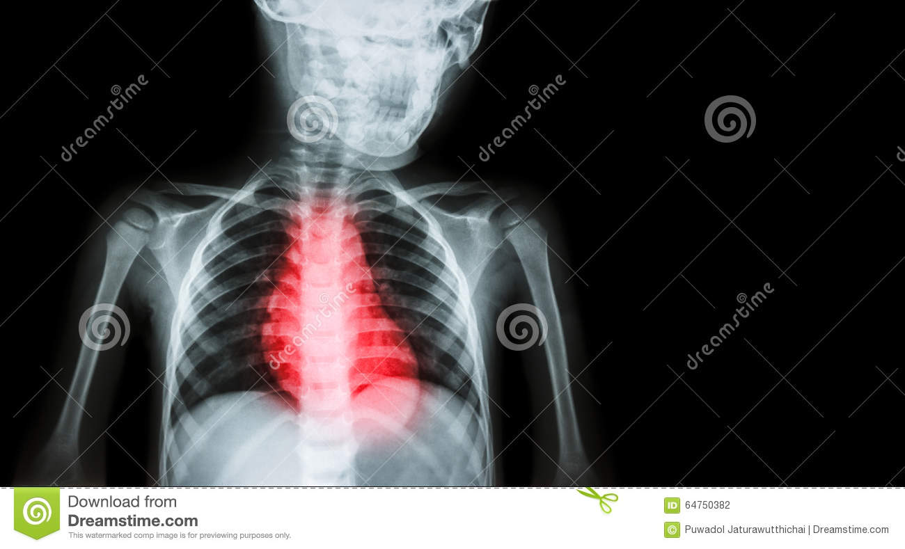 Ischemic Heart Disease , Myocardial Infarction ( MI ) ( Film x-ray body of human with heart disease and blank area at right side )