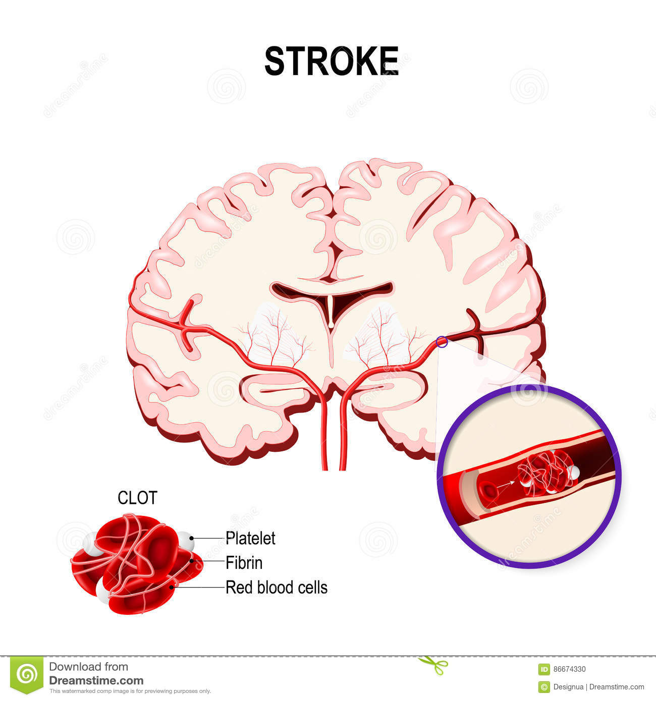 ischemic stroke Introduction stroke and cerebrovascular disease is a major cause of mortality and disability worldwide (1,2)ischemic stroke is caused by.
