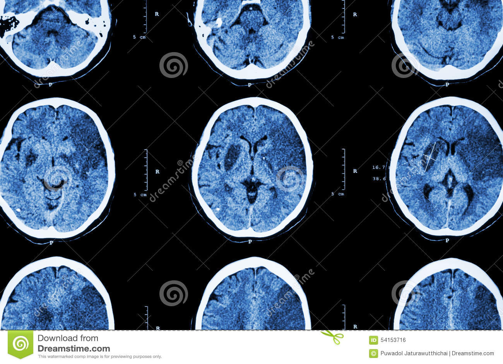 Ischemic Stroke : ( CT Of Brain Show Cerebral Infarction At Left ...
