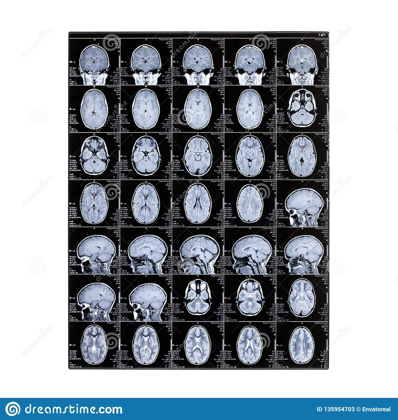 Isolated X-ray of a child`s head. Magnetic resonance imaging. MRI of the brain. Day of the medical worker radiologist