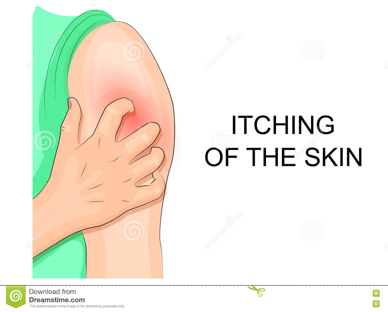 how to stop eczema itching immediately