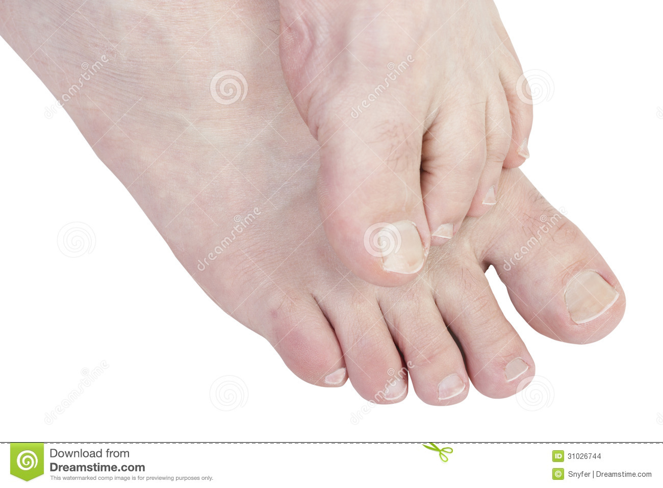 Itchy Feet. Stock Images - Image: 31026744