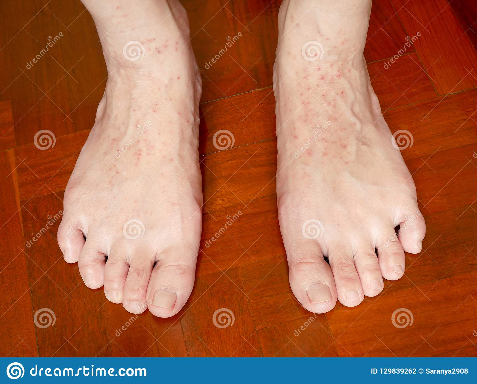 An Itchy Skin Rash On Woman`s Feet Stock Photo - Image of body