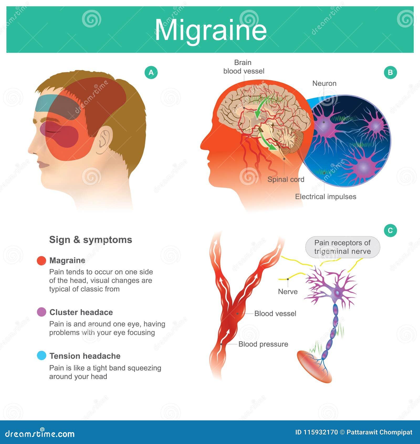 Jaqueca El dolor de cabeza, dolor, tiende el cooccur en un lado del headP