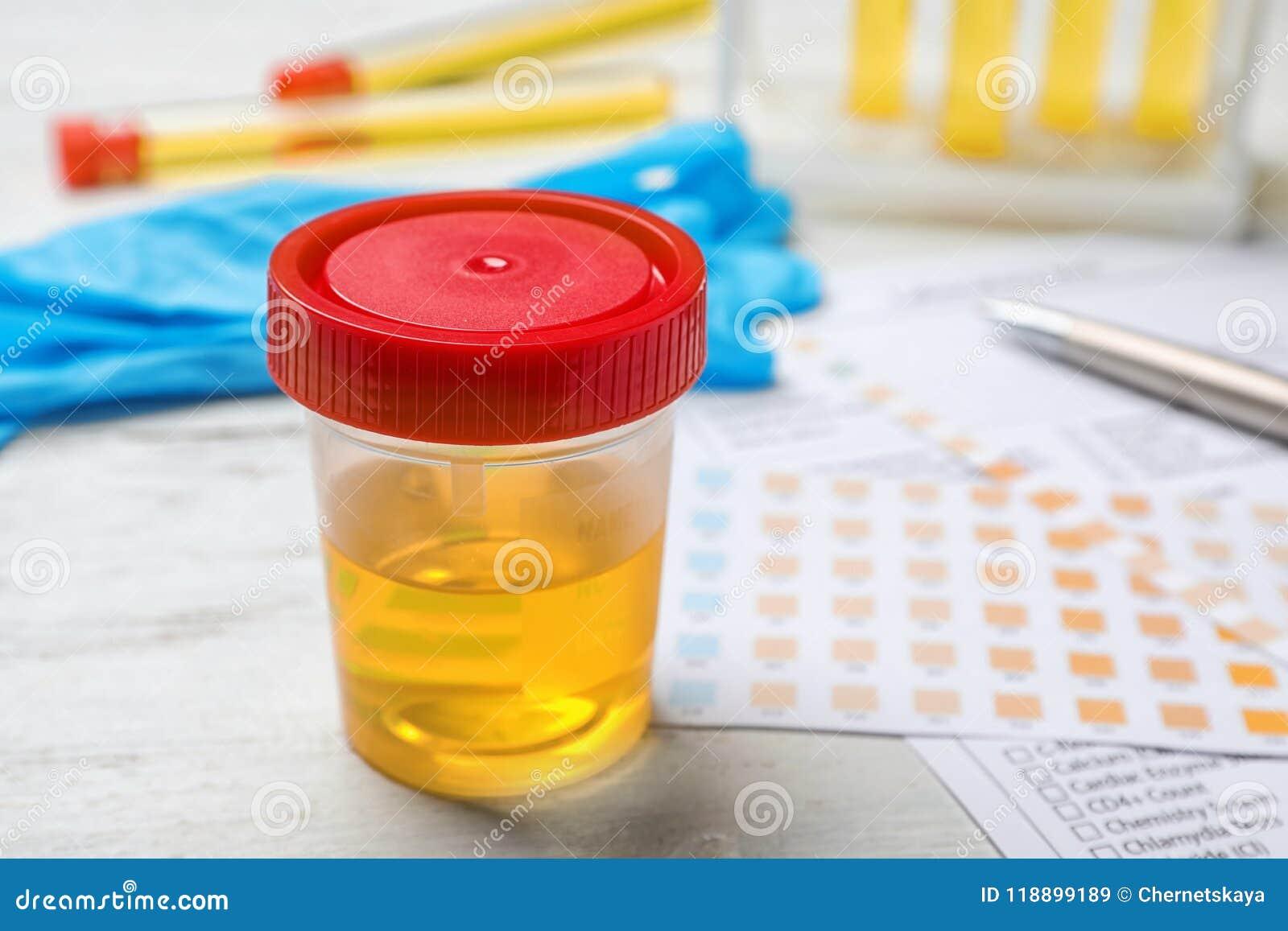 Jar with urine sample on table. Urology concept