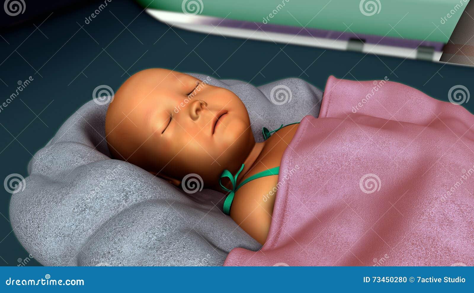 Jaundice in new born stock photo. Image of born, jaundice ...
