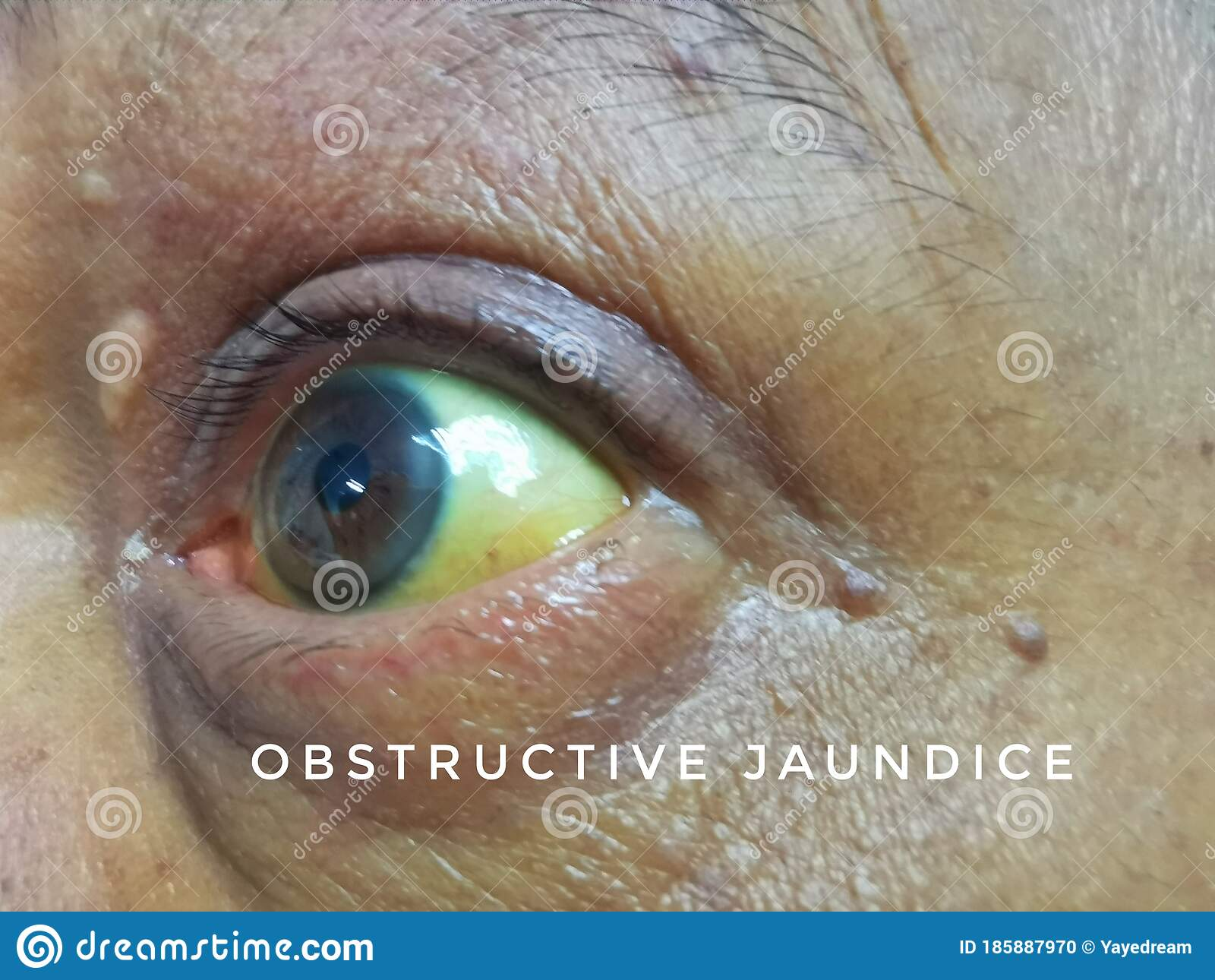 Pancreatic cancer with jaundice Rectal cancer and colon cancer