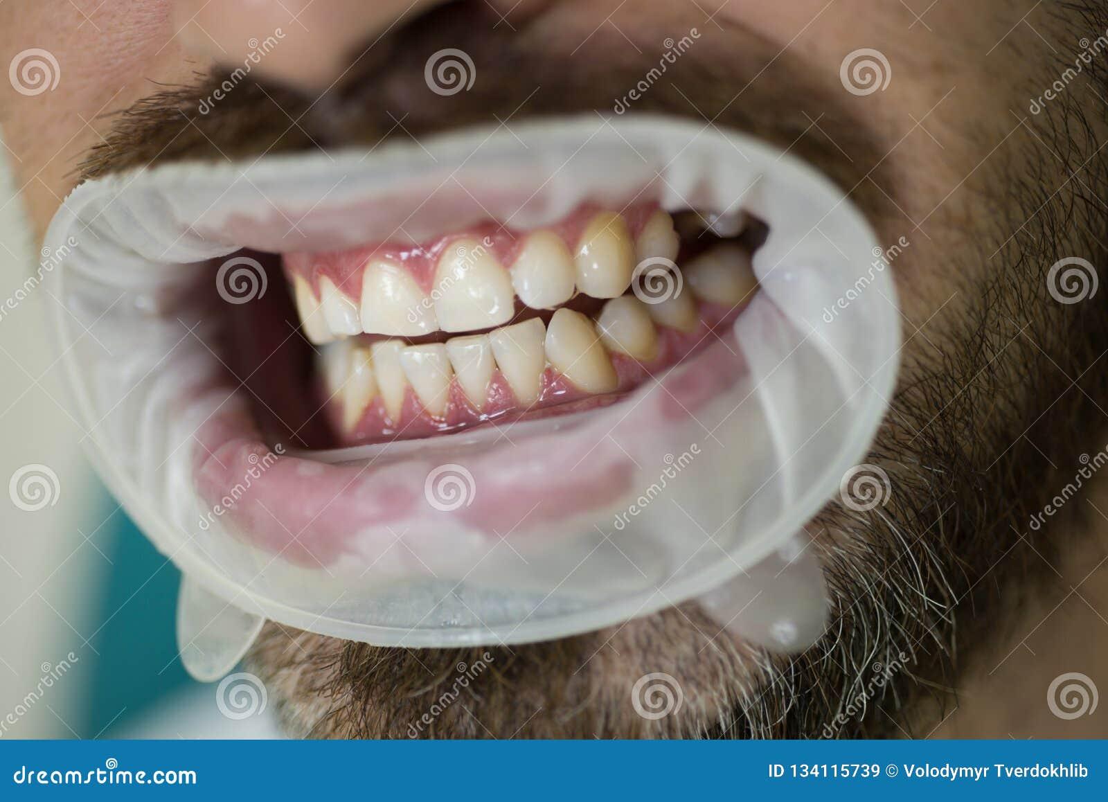 Jeune homme choisissant la couleur des dents au dentiste de Female de dentiste vérifiant les dents patientes avec le miroir dans