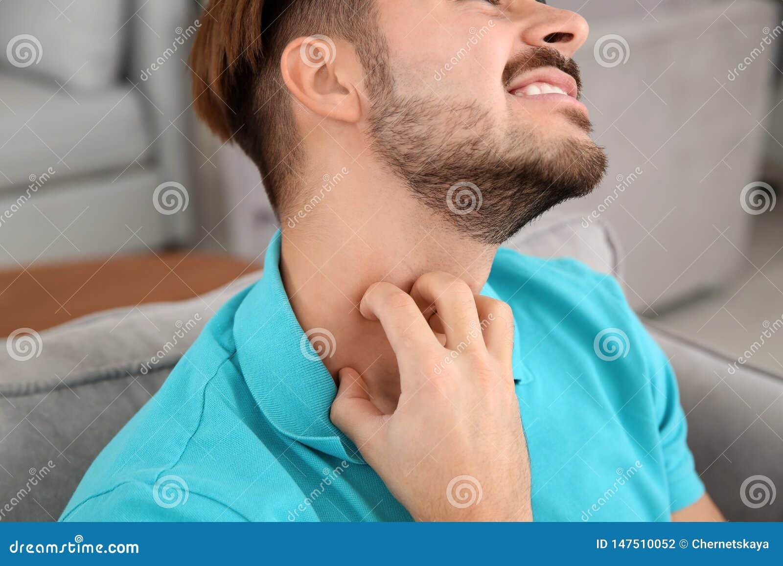 Jeune homme rayant le cou D?mangeaison ennuyeux