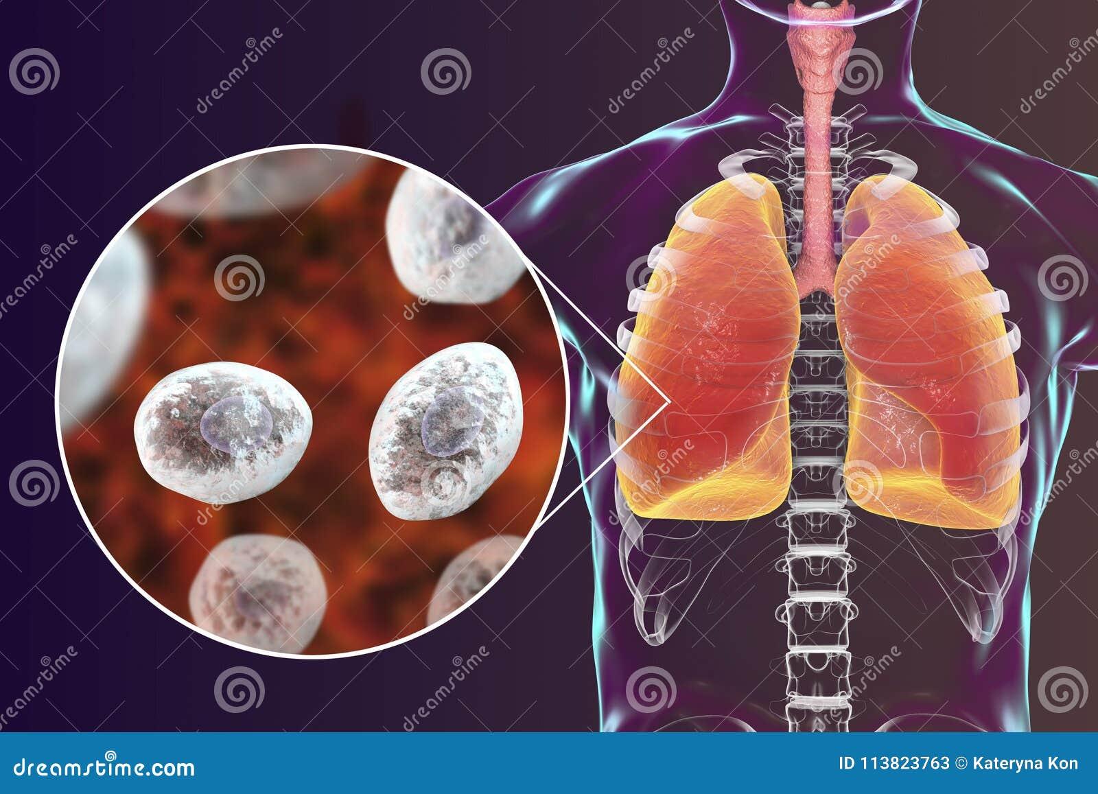 Jirovecii или carinii Pneumocystis в человеческих легких