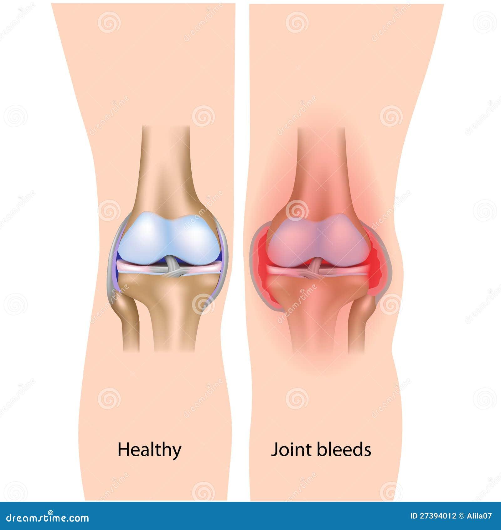 Stock Photography Joint Bleeds Hemophilia Image27394012