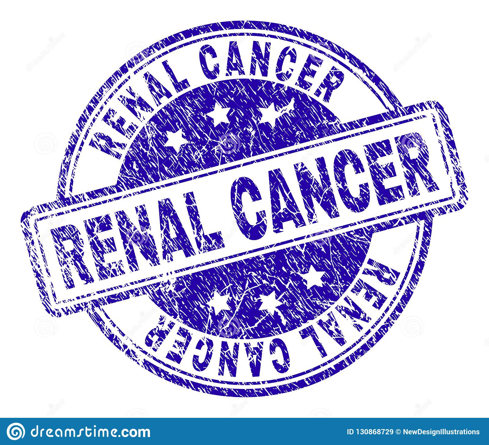 Joint RÉNAL texturisé de timbre de CANCER de grunge
