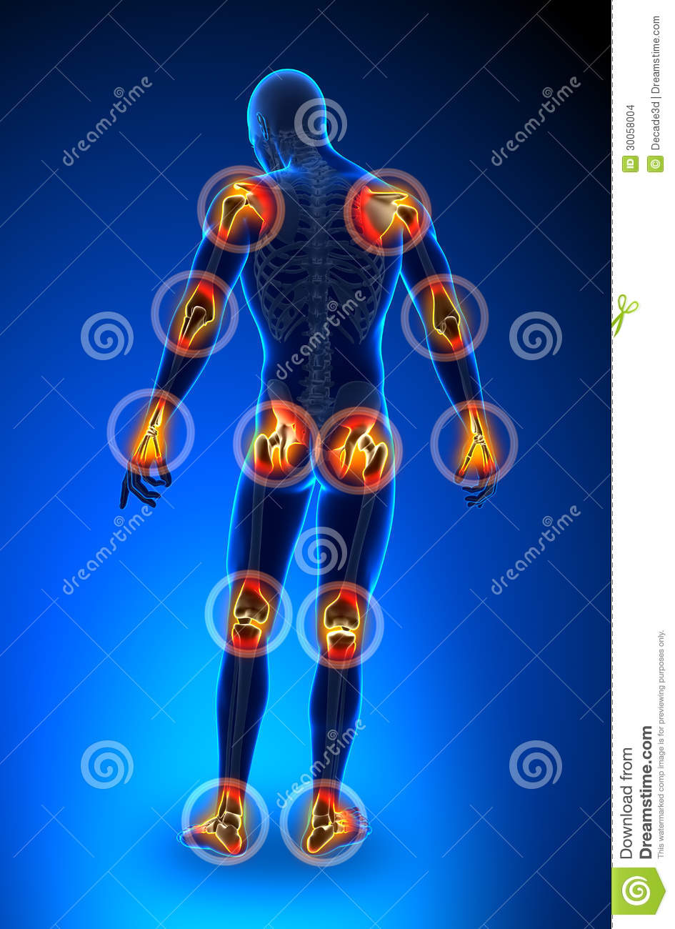 Download Joints pain - full figure stock illustration. Illustration of bone - 30058004
