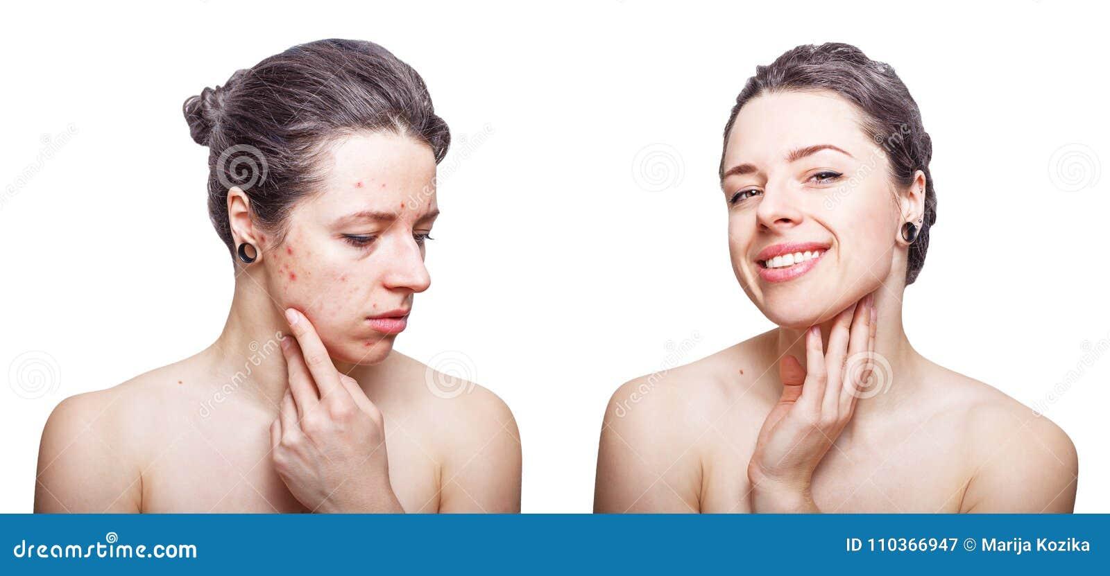 Jonge vrouw die met die koel donker grijs haar kijken over de problemen van de gezichtshuid wordt verstoord en blij na behandelin