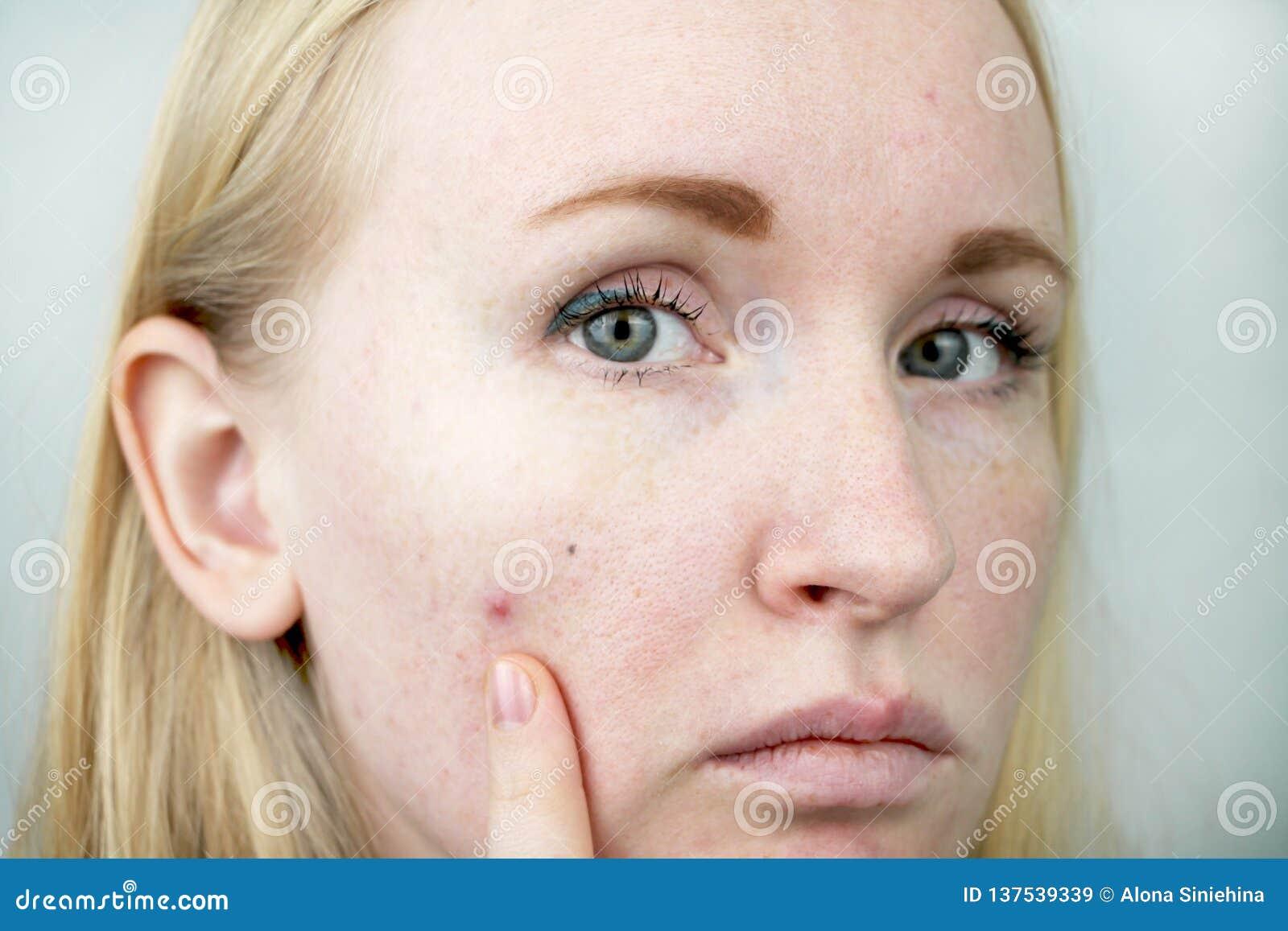 Jovem mulher com acne Aplicando a pomada à espinha Beleza, conceito do estilo de vida dos cuidados com a pele