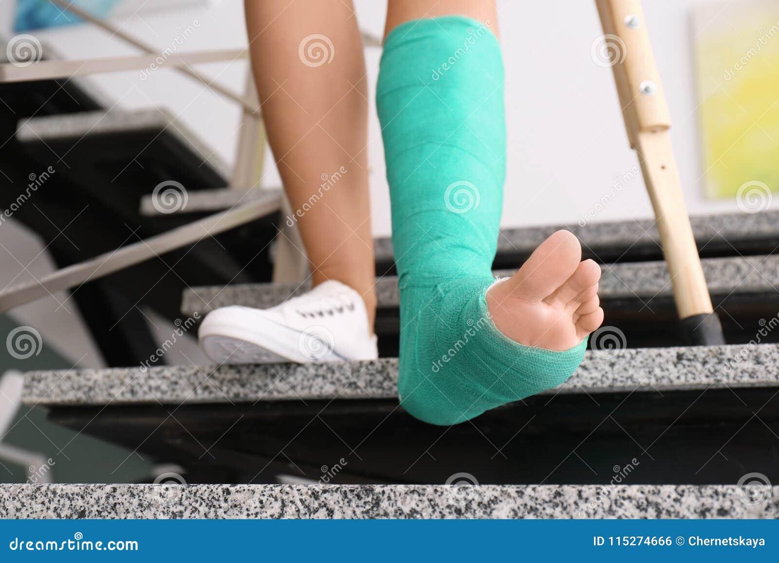 Jovem mulher com muleta e pé quebrado no molde