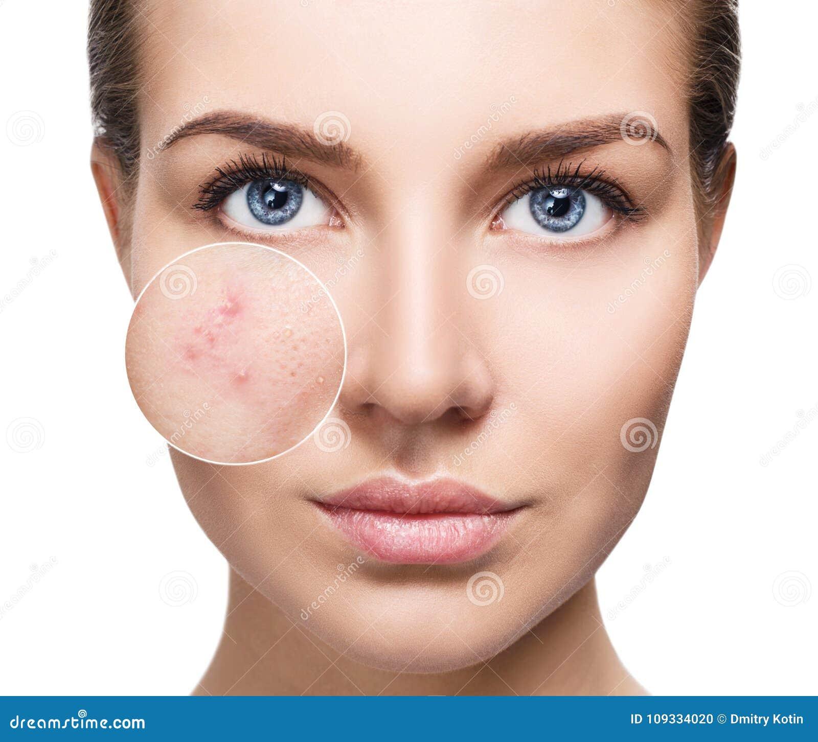 Jovem mulher com pele da acne no círculo do zumbido