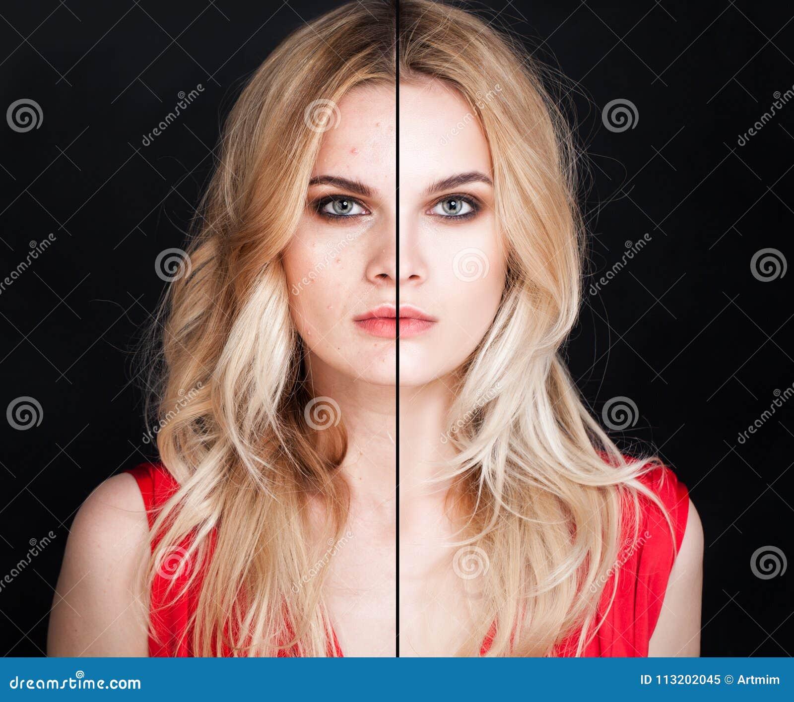 Jovem mulher com problema de pele e pele clara