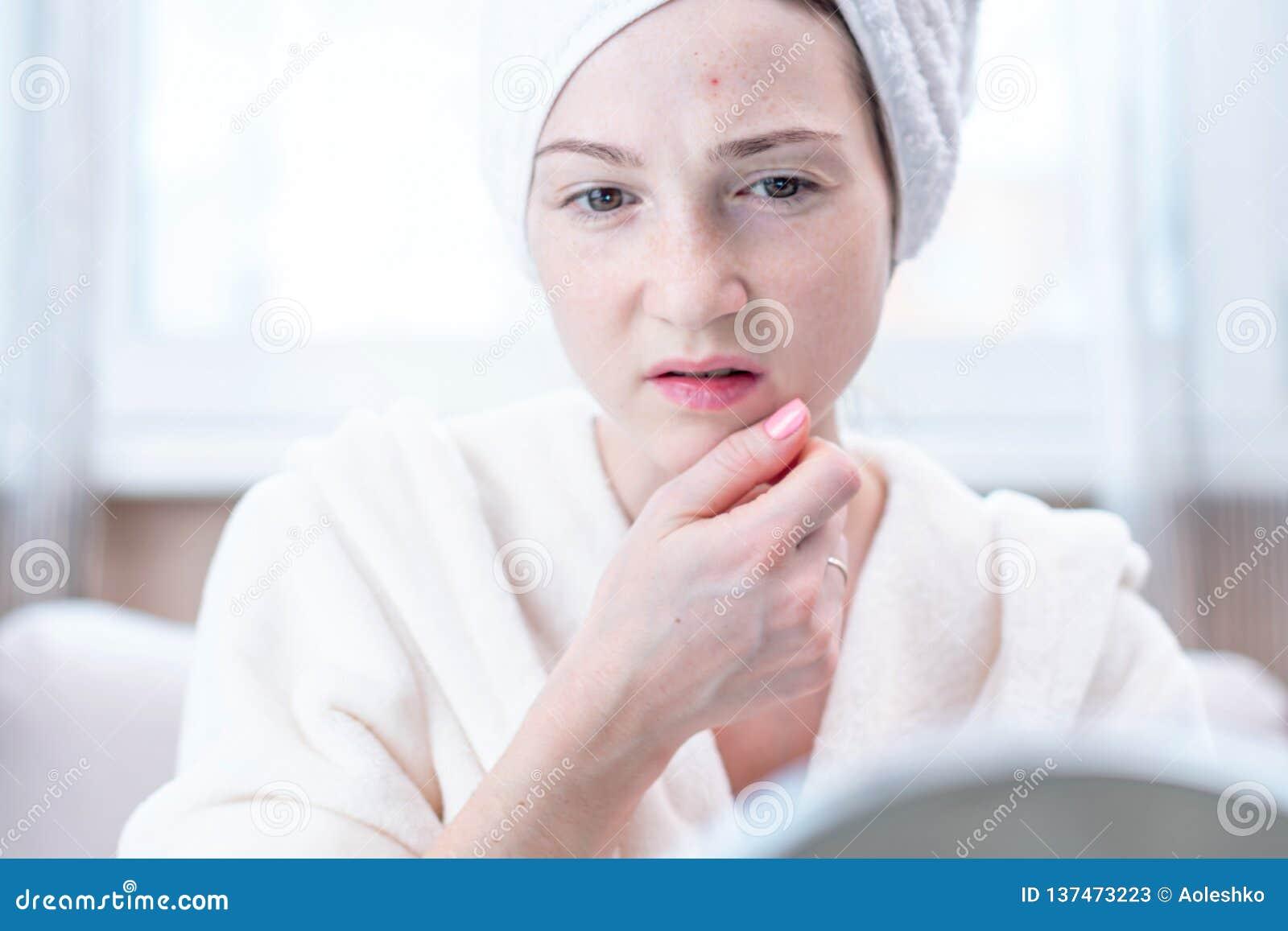 Jovem mulher infeliz bonita que olha a acne em sua cara Conceito da higiene e do cuidado para a pele