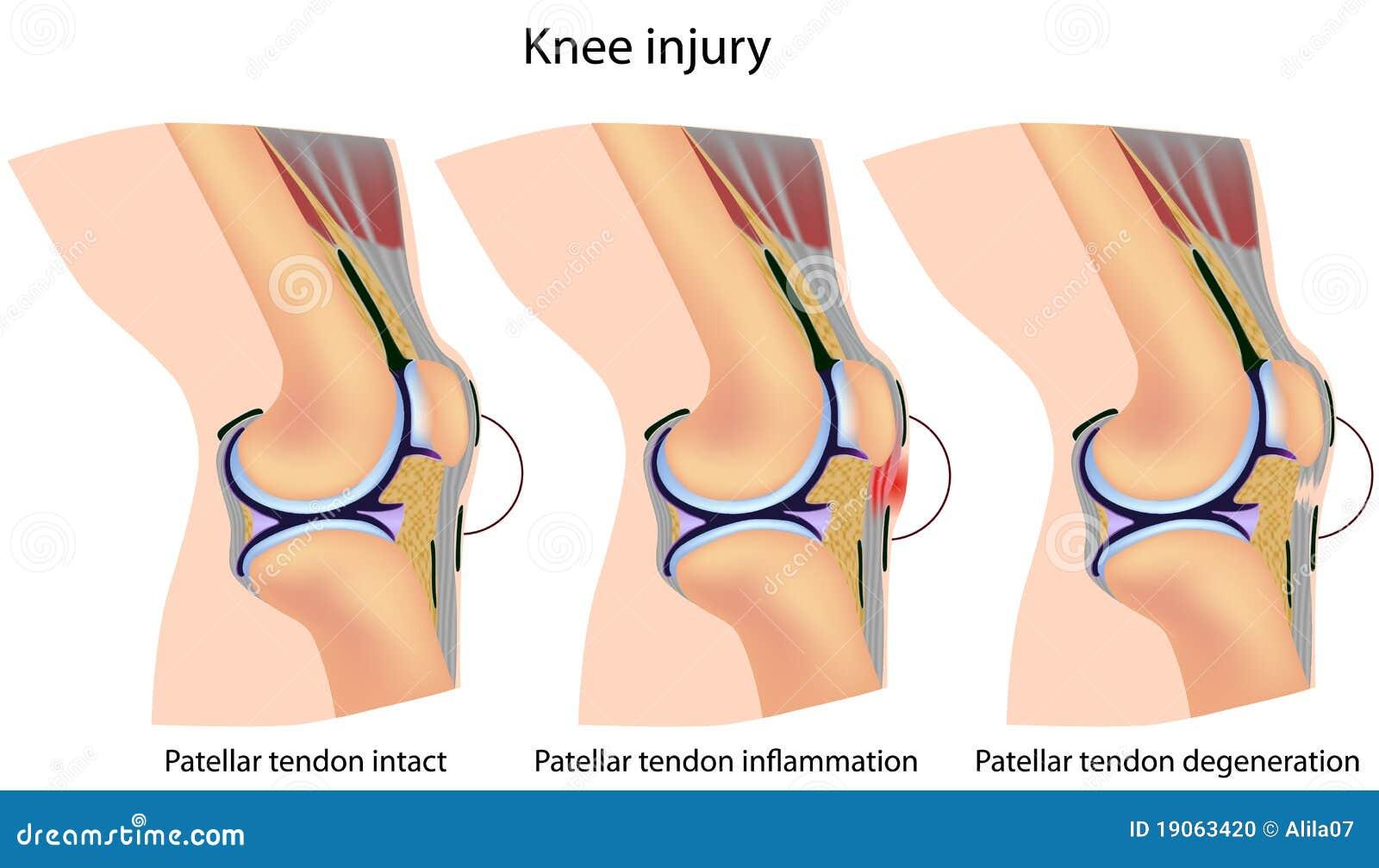 Jumper\'s knee anatomy stock vector. Illustration of orthopedics ...